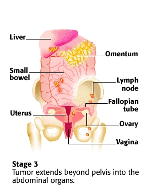 the background information of ovarian cancer 2016-05-05  contents 3 contents the ovaries and ovarian cancer 5 diagnosing ovarian cancer 23 treating ovarian cancer 41 after your treatment 77 your feelings and relationships 85 work and support 97 further information 103.